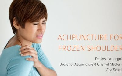Acupuncture Treatment for Frozen Shoulder