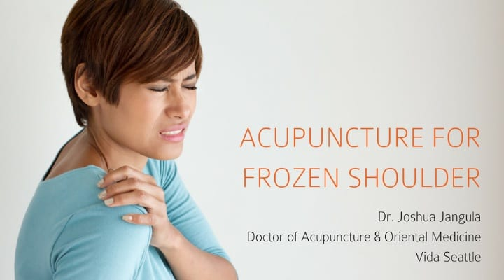 acupuncture for frozen shoulder