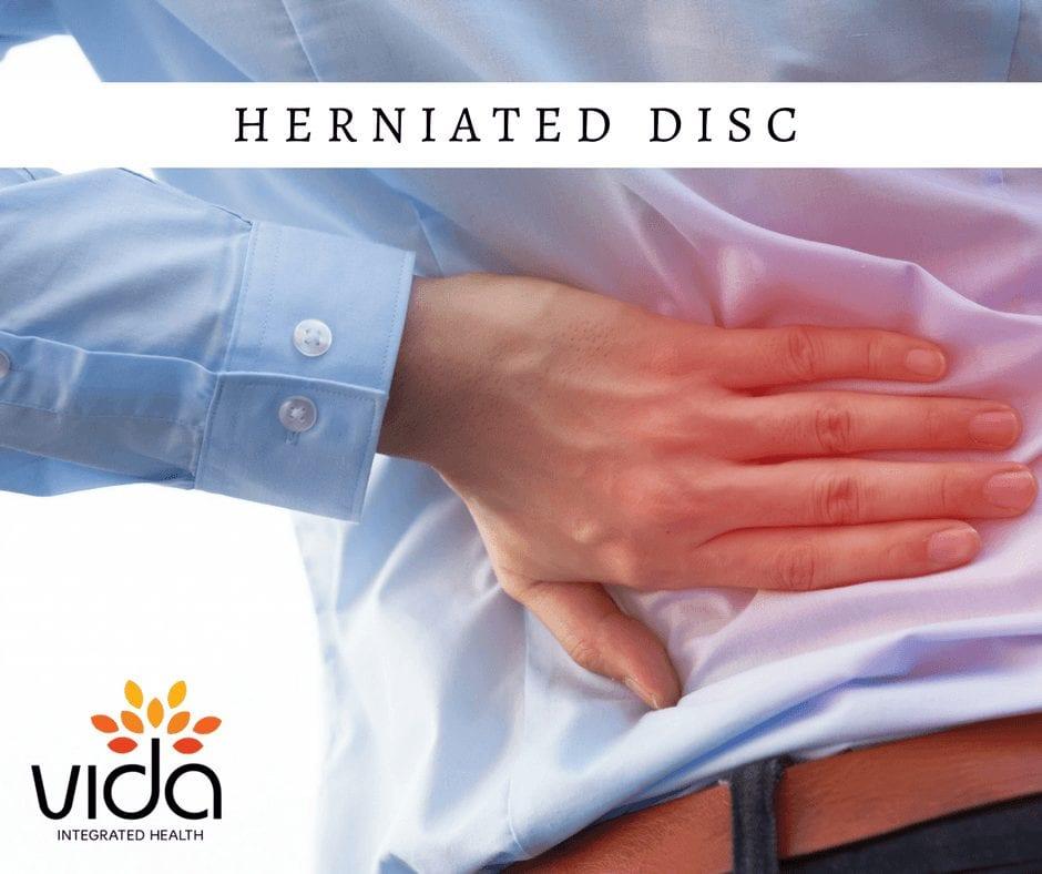 herniated-disk