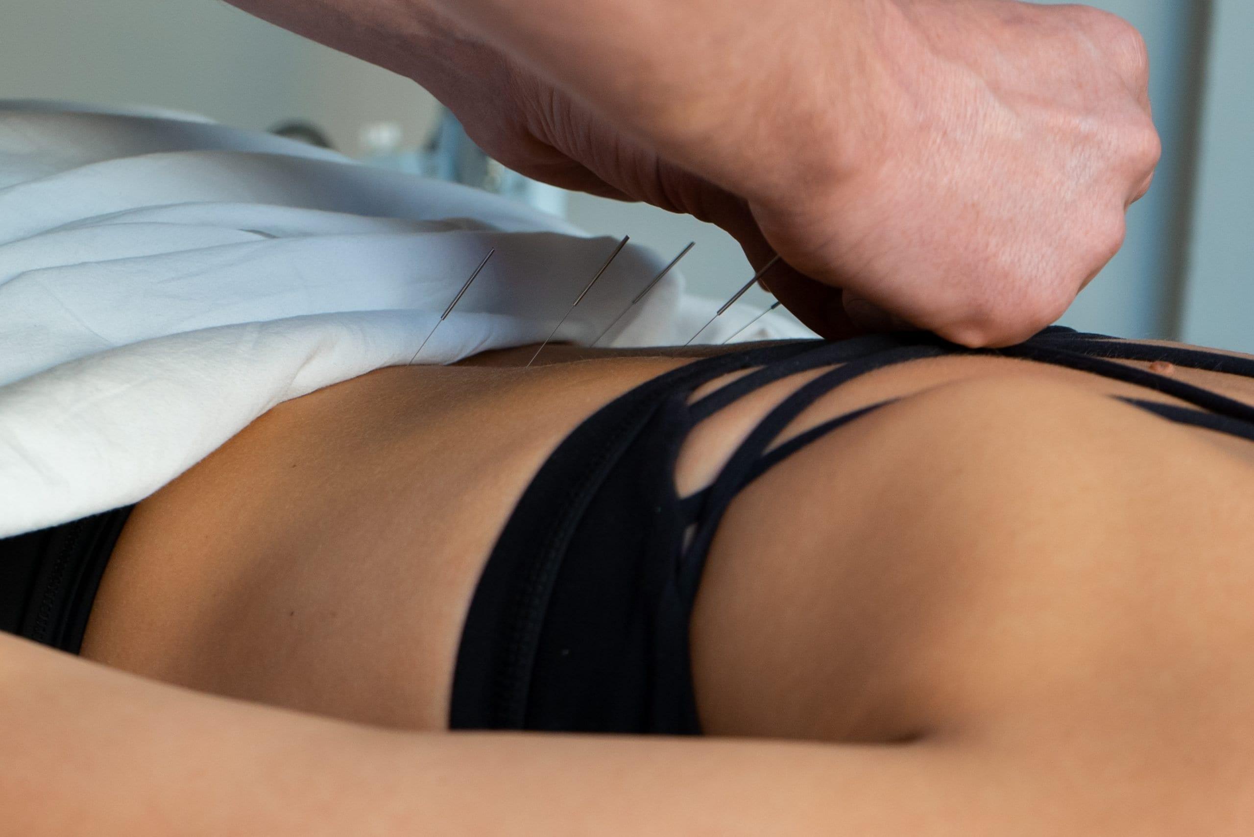 Cervical Drop - Gentle Chiropractic Techniques